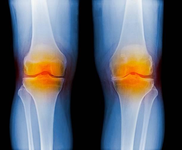 Radio des genoux mettant en évident un cas d'arthrose