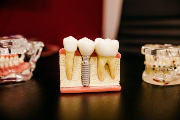 Quelle est la durée de vie d'une couronne dentaire ?